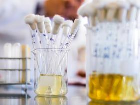 检测尿液中的LSD或蘑菇等60多种毒品