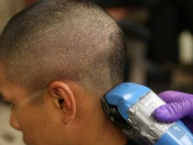 毛发快速检测毒品的初筛验吸毒