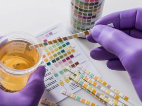 芬太尼类物质药理毒理作用 及检测方法