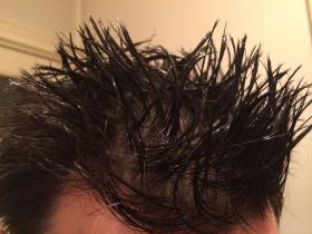 毛发检测3个月有办法能通过吗