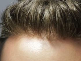 毛发中15种毒品及代谢物的检测