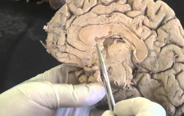 戒掉吸冰毒之后人的大脑结构变化后遗症