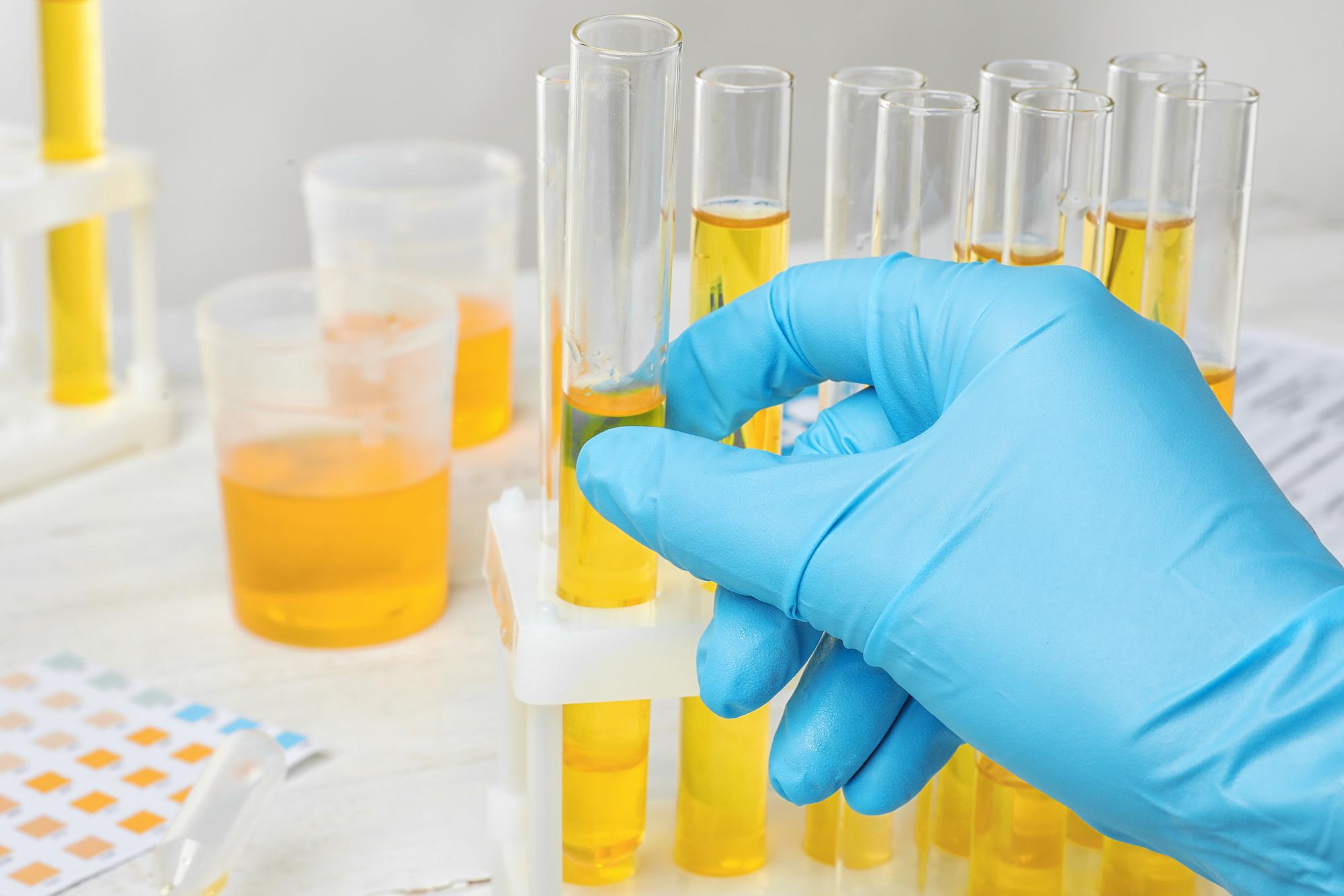 吸毒尿检假阳性,该如何检测食物中的罂粟
